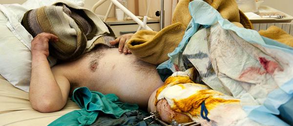 Sle Sheikh Ahmed tras ser atendido en el hospital de Trípoli. Foto de Natalia Sancha